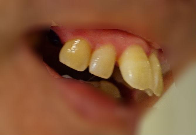 歯科矯正 右上顎小臼歯抜歯後 モンスター状態