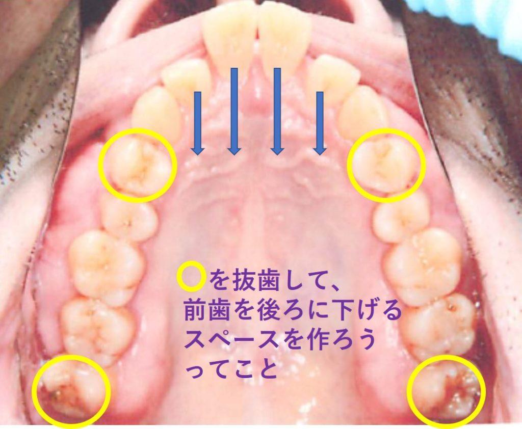 抜歯計画 矯正歯科