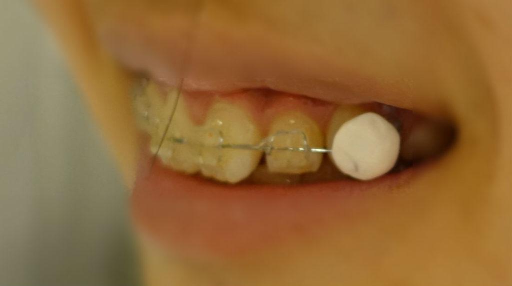 歯科矯正 ギシーグー使用例