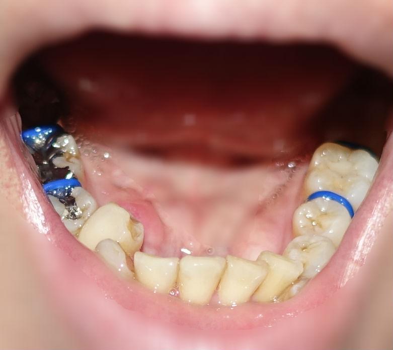アラフィフ歯科矯正 青ゴム 装着