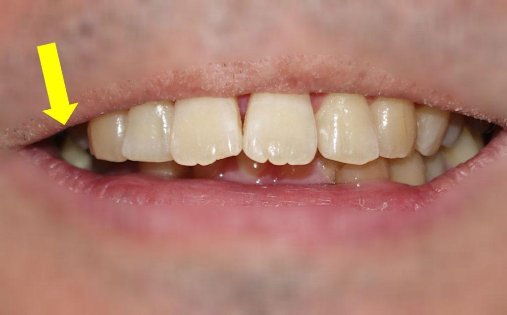 歯科矯正 右上顎小臼歯抜歯後 正面から