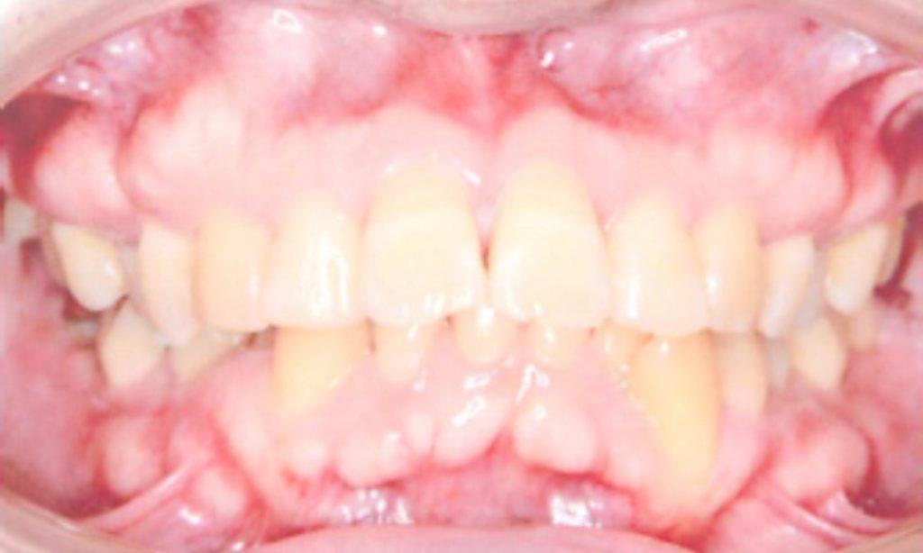 歯科矯正 出っ歯治療前 前から