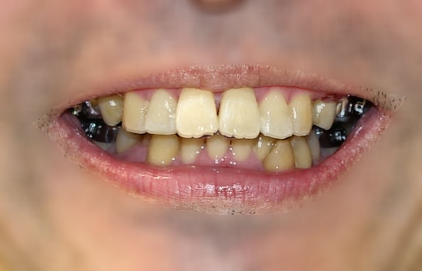 歯科矯正 裏側装置装着後 真正面から