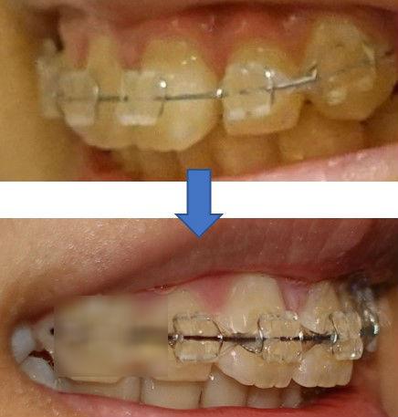 歯科矯正2か月経過 子供