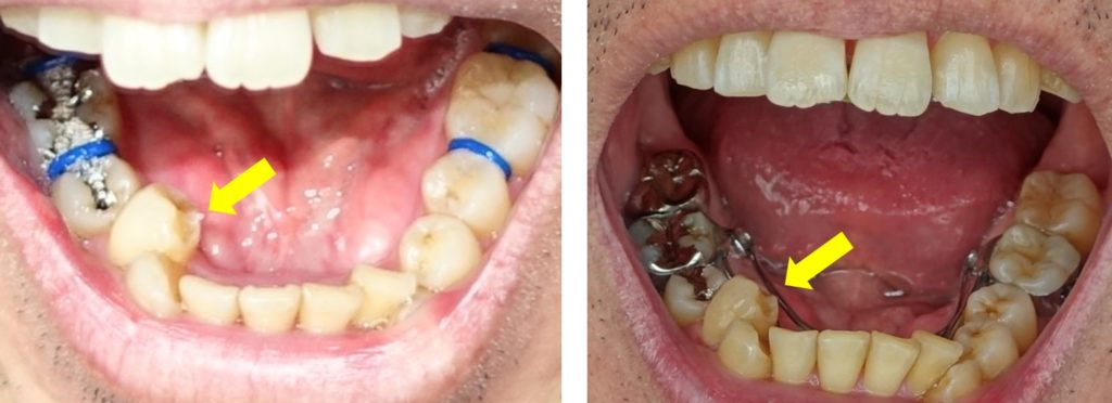 歯科矯正1か月の変化 内側に倒れこんでいる右第一小臼歯