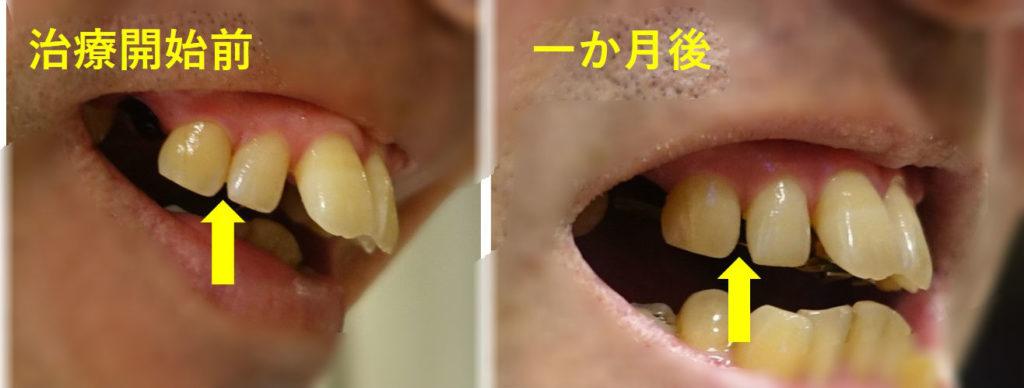 歯科矯正1か月の変化 右2歯と3歯の間に隙間