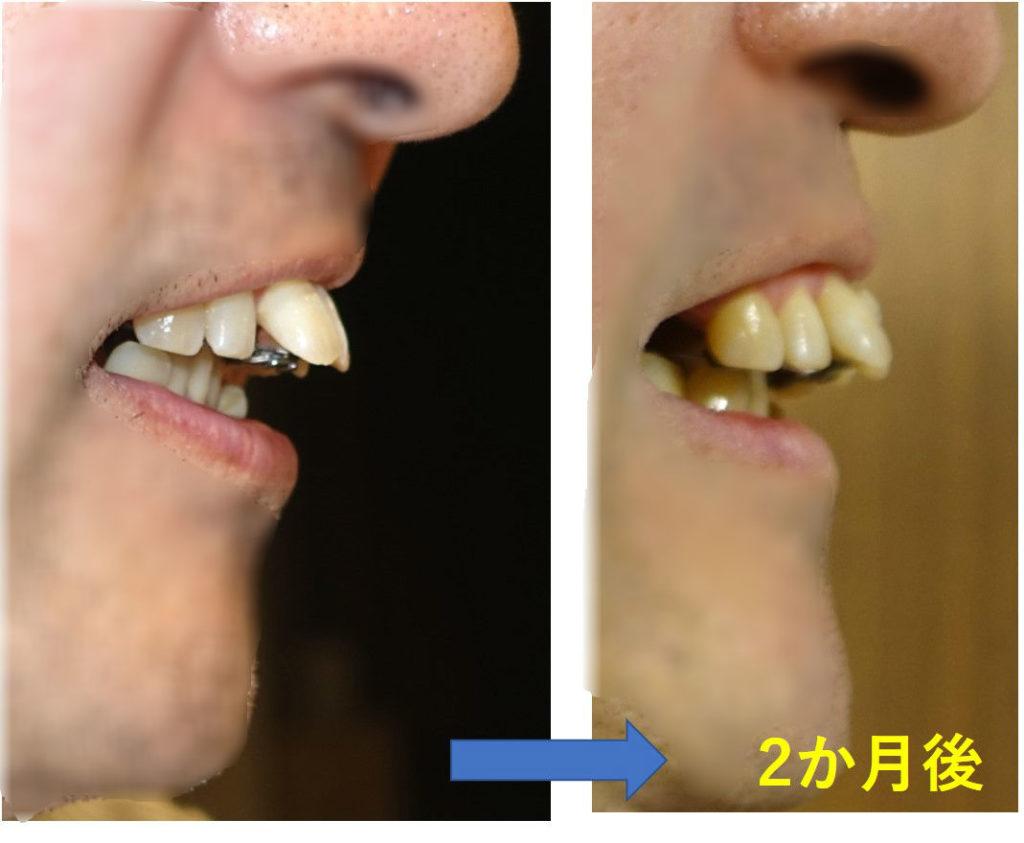 2か月後 出っ歯右側面