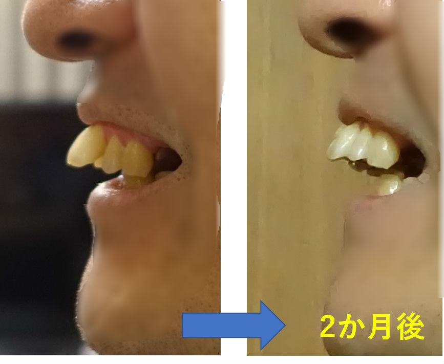 2か月後 出っ歯左側面