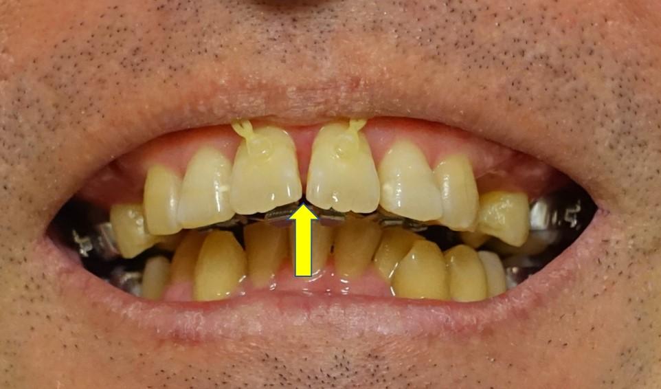 2か月後 上顎切歯の隙間形成
