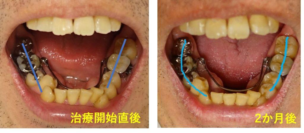2か月後 下顎全体の広がり
