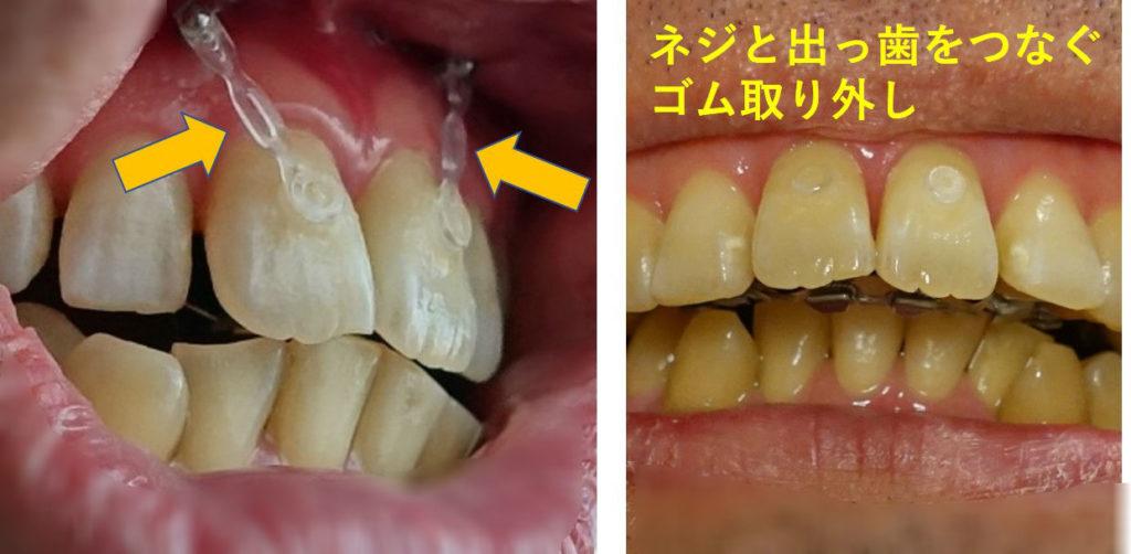 2か月後 出っ歯圧下用ゴムの取り外し