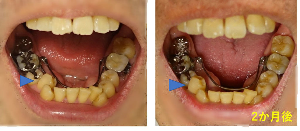 2か月後 右第一小臼歯立ち上がり
