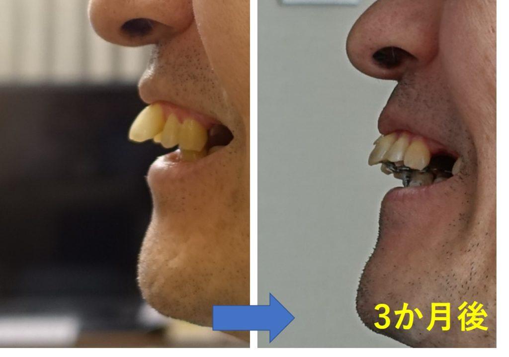 歯科矯正三か月後出っ歯側面1