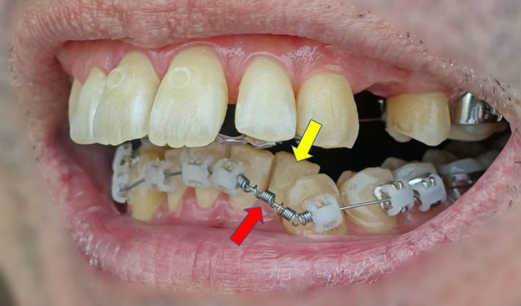 歯科矯正三か月後 下の歯外側矯正装置 やや左