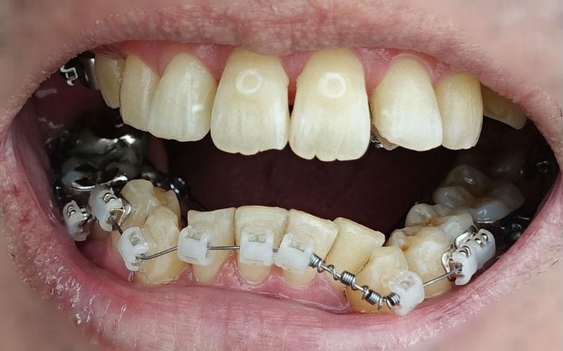 歯科矯正三か月後 下の歯外側矯正装置 前面から