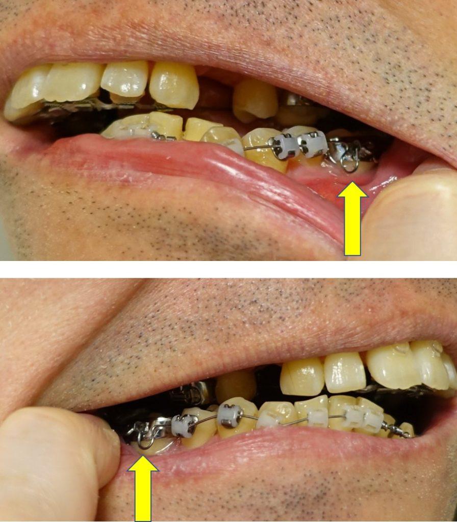 歯科矯正4か月後 下顎のアーチワイヤのバネ