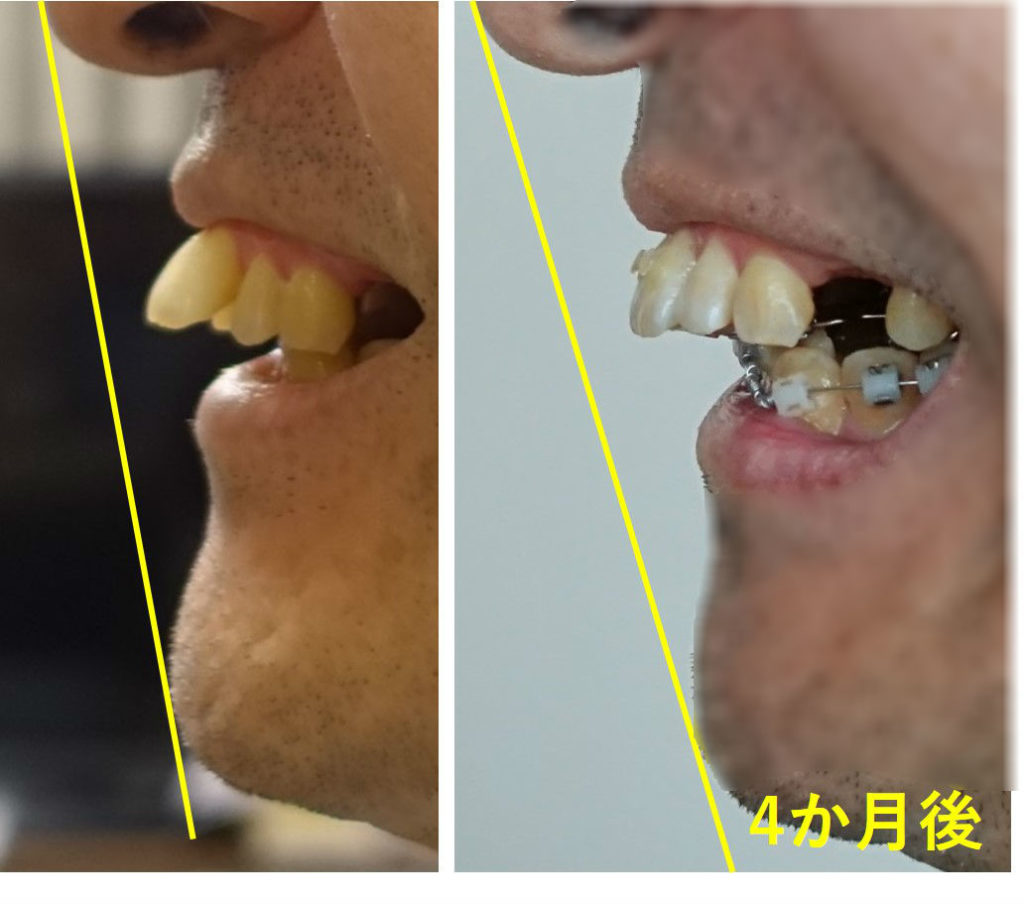 矯正歯科 4か月後 出っ歯側面図