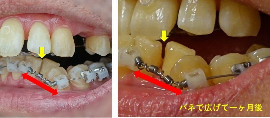 矯正歯科 4か月後 下顎左第一第二切歯の隙間