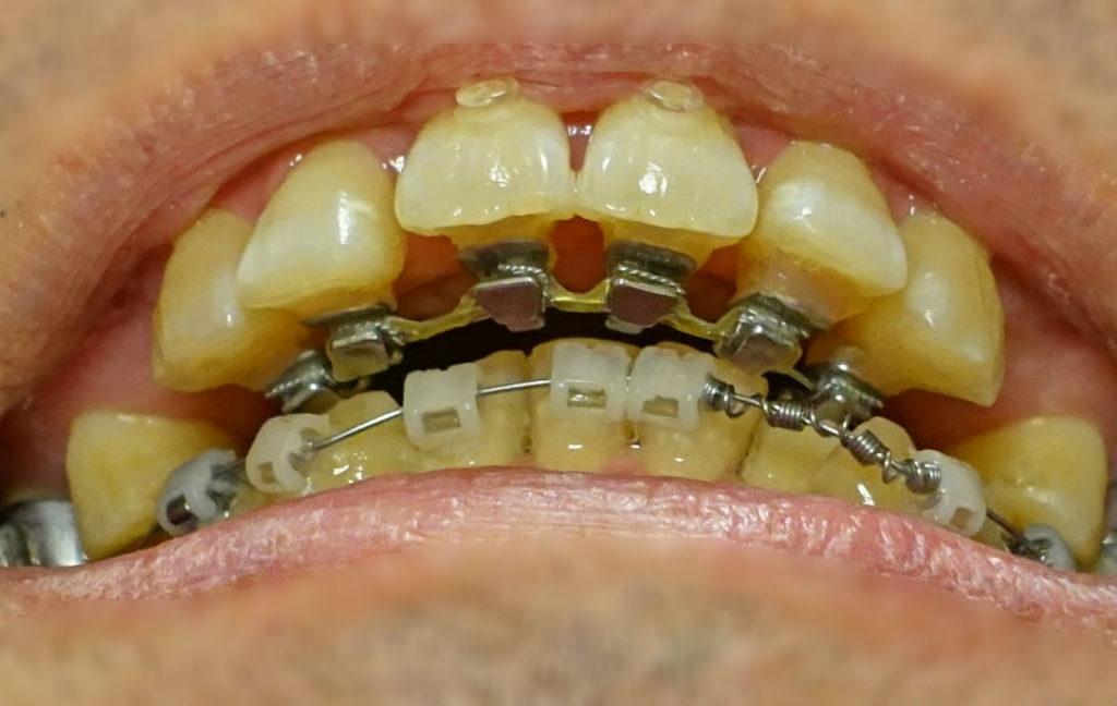 矯正歯科 4か月後 上下の装置が接近