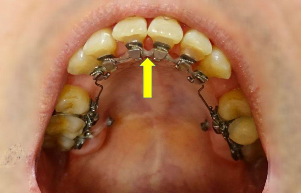 歯科矯正4か月後 出っ歯がスキッパにならないように ゴム