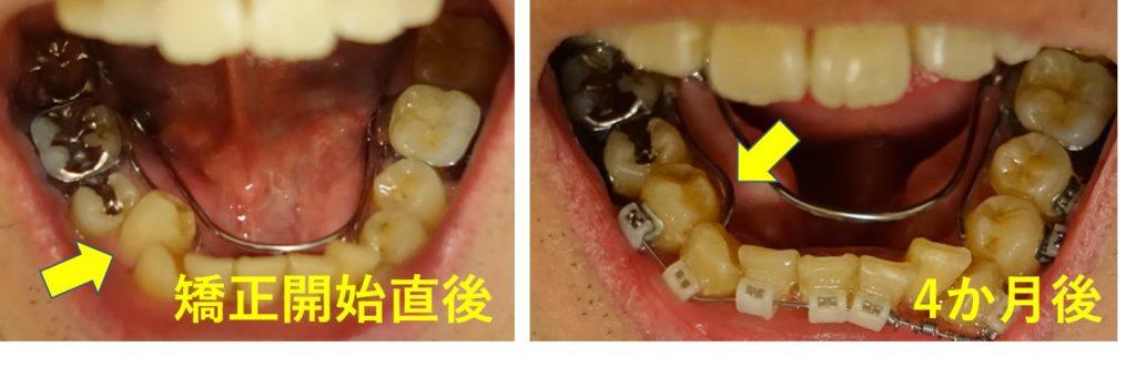 矯正歯科 4か月後 右第一臼歯