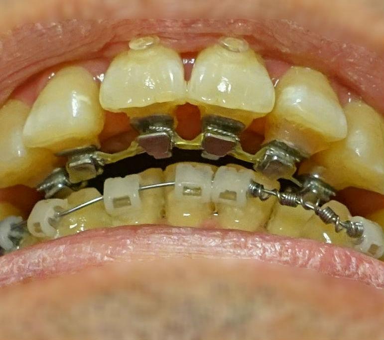矯正歯科 4か月後 上下の装置が接近EC