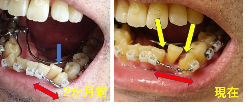 歯科矯正5か月 2か月のばねで広がった隙間