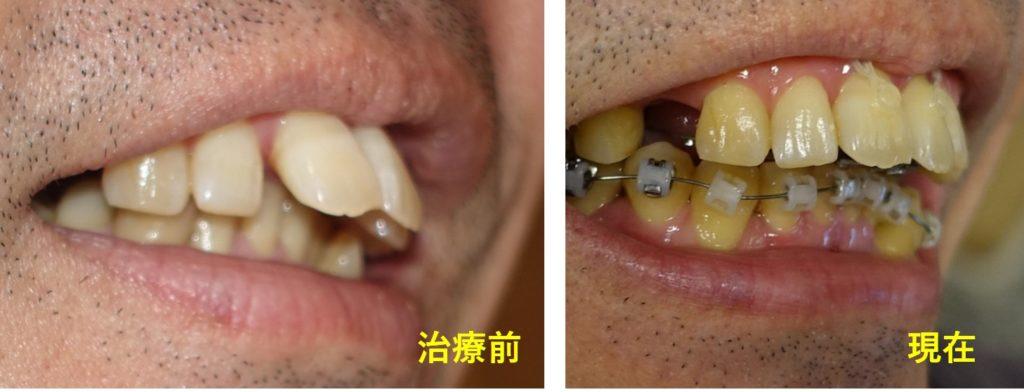 歯科矯正5か月 上の歯の被さりが軽減 斜めから