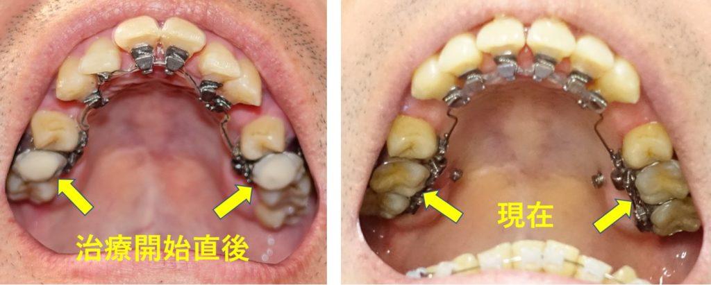 歯科矯正5か月 上第一小臼歯詰め物除去