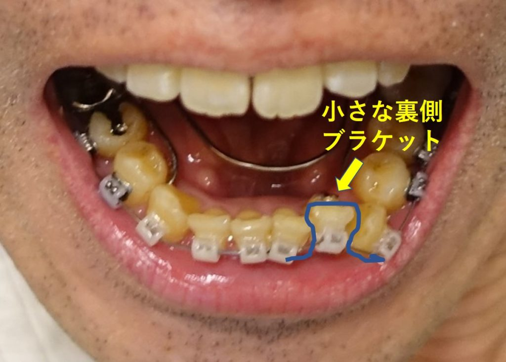 歯科矯正5か月 左第二切歯 輪ゴム掛けるの図