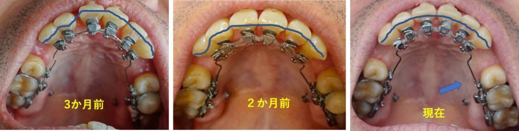 6か月目 上顎切歯の並びはキレイに