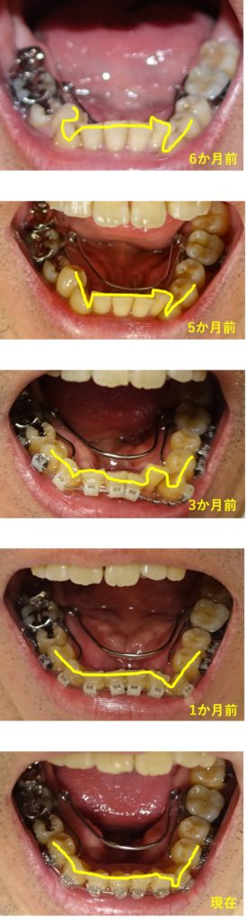 歯科矯正 約7か月下顎の並びの経過