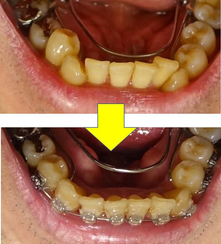 歯科矯正7か月 下顎の並び改善 EC