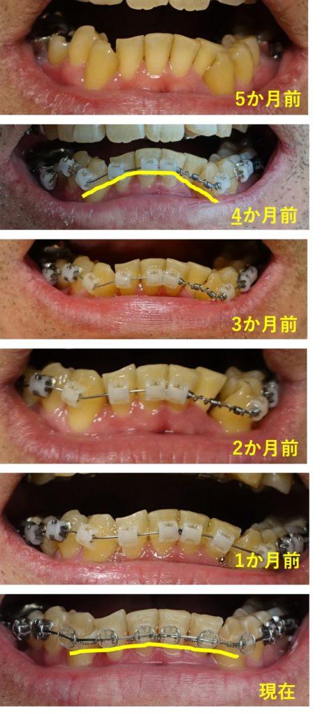 歯科矯正 約7か月下顎の並びの経過 下顎正面から