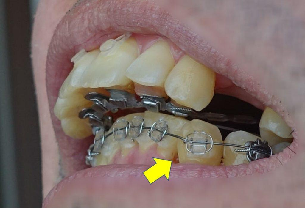 左下第二切歯 痛み出す