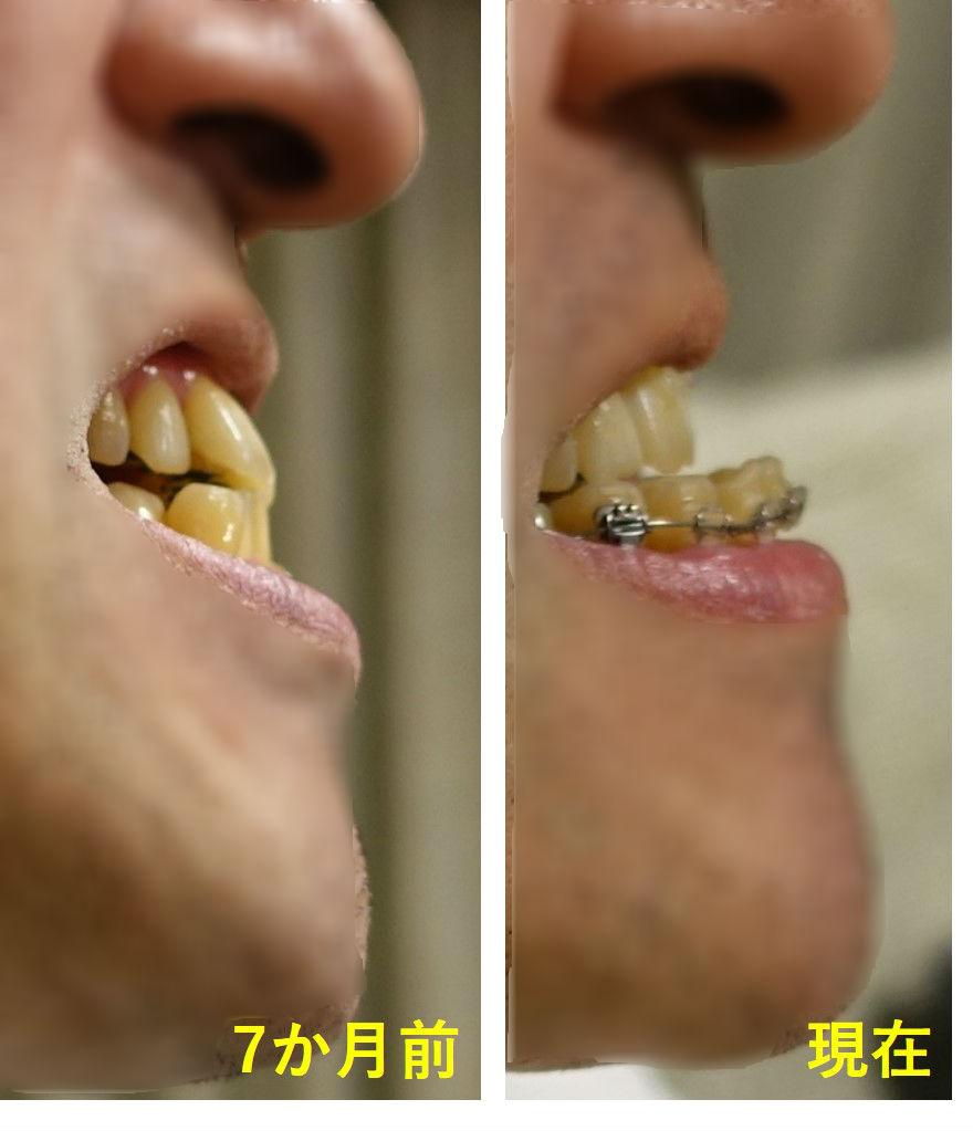 矯正歯科 8か月目 上顎切歯 側面比較 アイーンの図