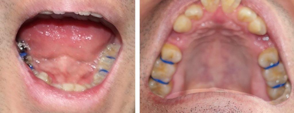歯科矯正 セパレーター 青ゴム 上下 臼歯の歯間に装着