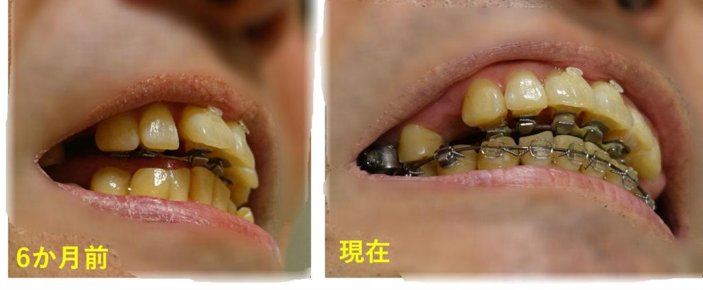 矯正歯科 8か月目 上顎切歯 右下から重なりの図