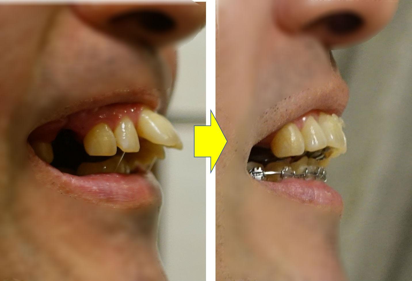 矯正歯科 8か月目 上顎切歯 側面比較EC