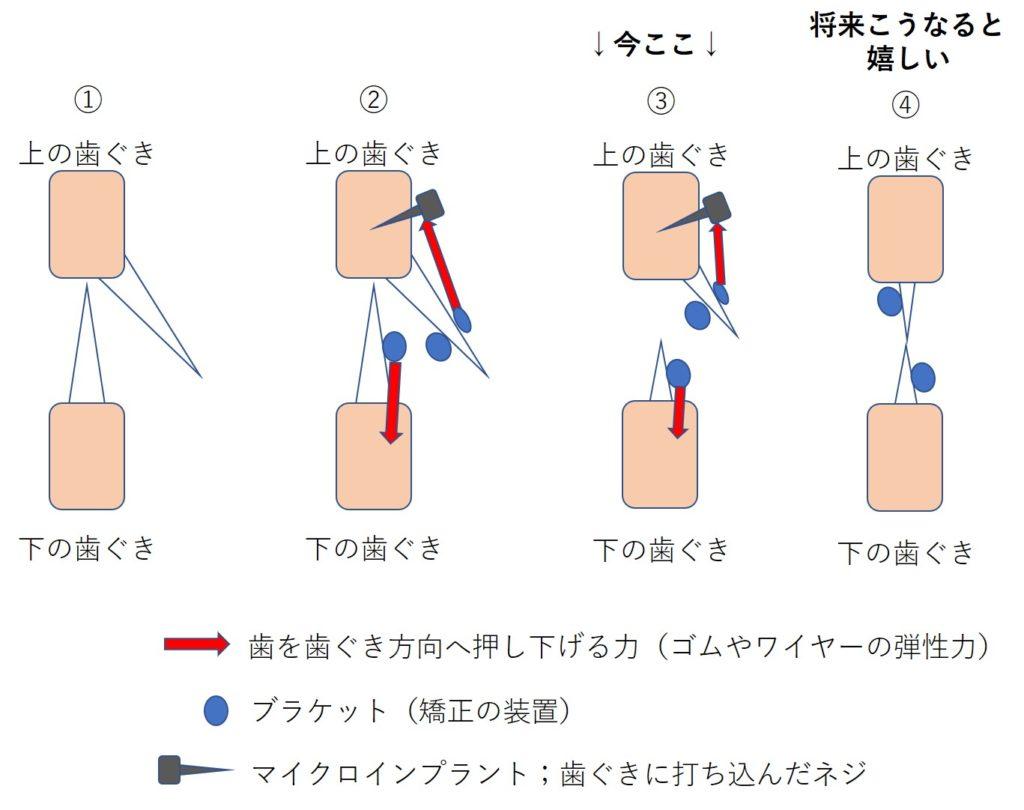 矯正歯科 歯を押し下げる(圧下)力03