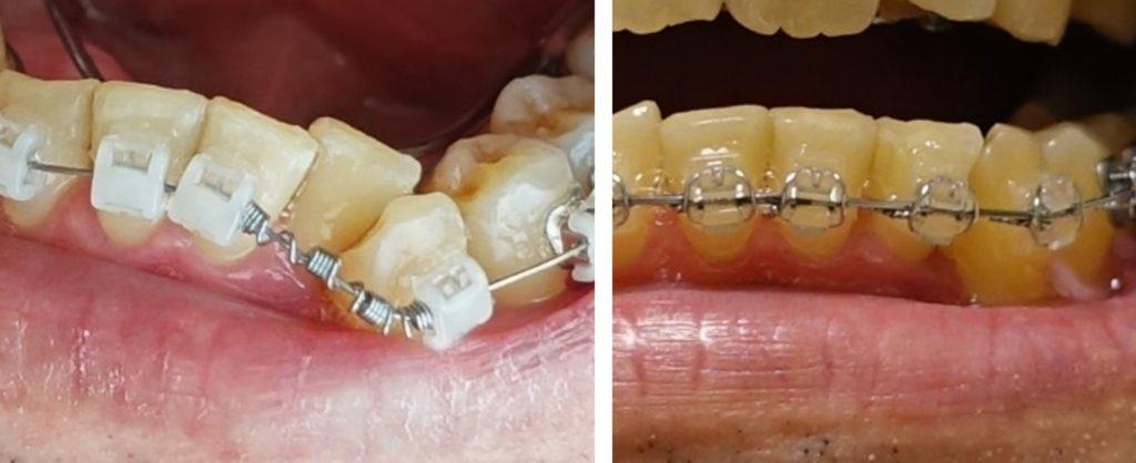歯科矯正 アーチワイヤーが細く丸いものから、太くて断面が四角形のものへ
