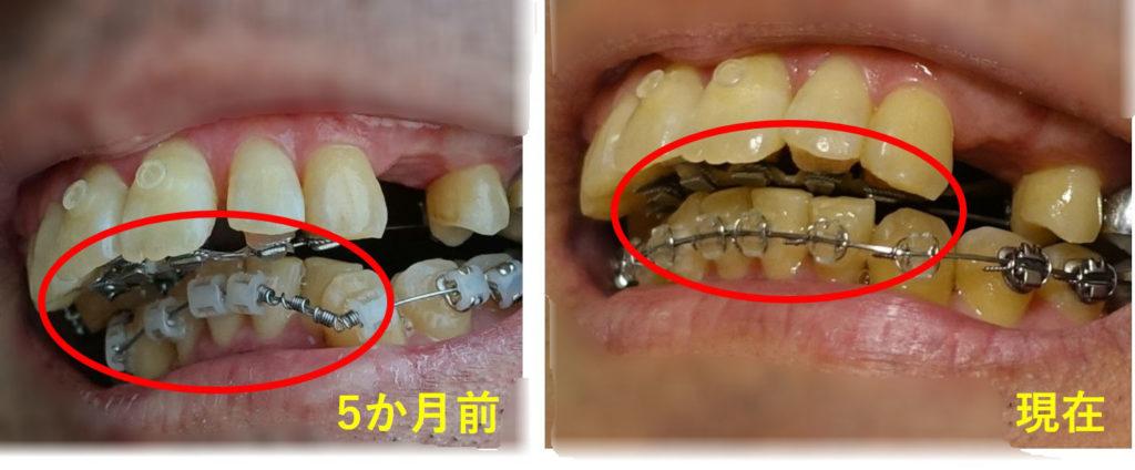 矯正歯科 8か月目 上下装置同士の干渉
