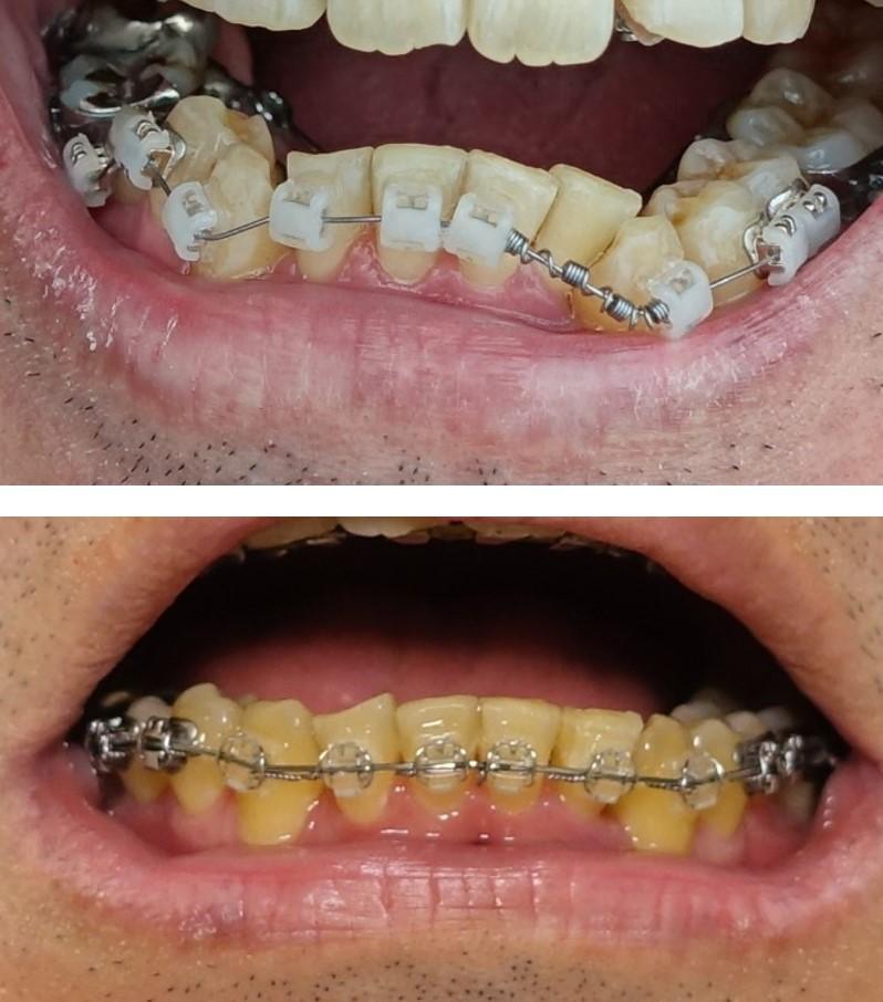 歯科矯正 下あご外側 ブラケット キャップでとめるか、ワイヤーで止めるか