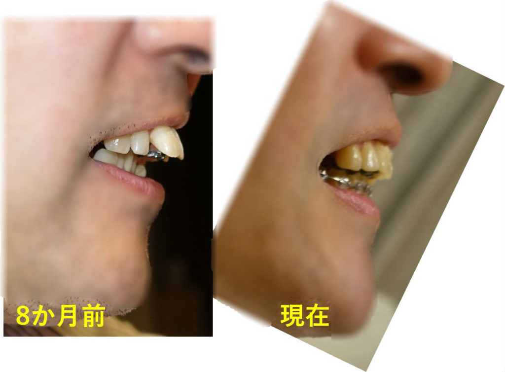 矯正歯科 8か月目 上顎切歯 側面比較