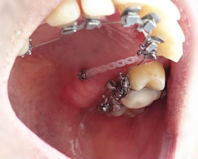 歯科矯正 上あご内側の金属製ブラケット 臼歯のあたり
