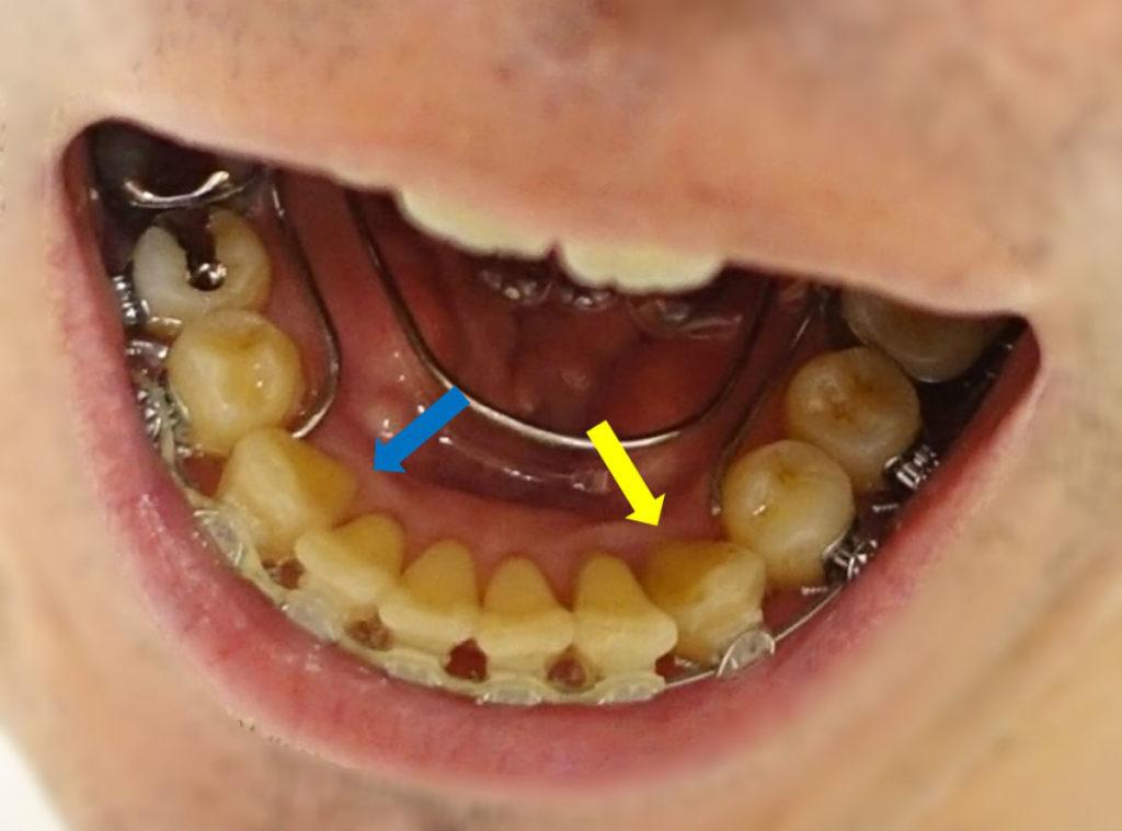 歯科矯正10か月 下顎左犬歯がわずかに外側に