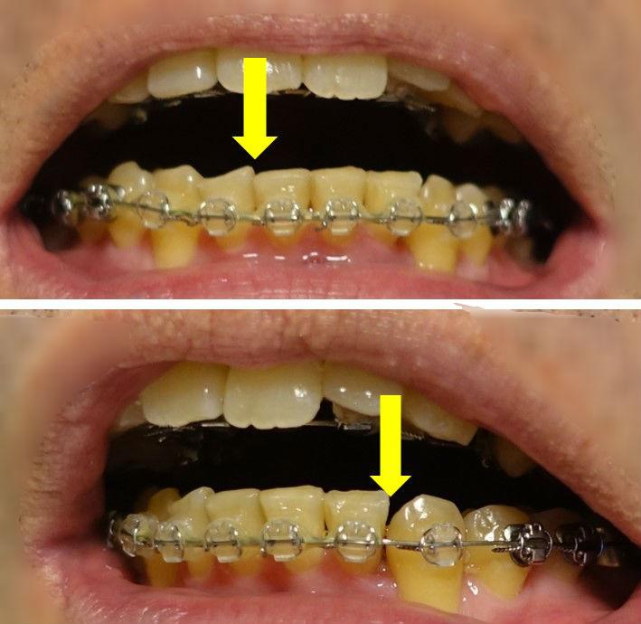 歯科矯正10か月 下顎 歯間の隙間が移動