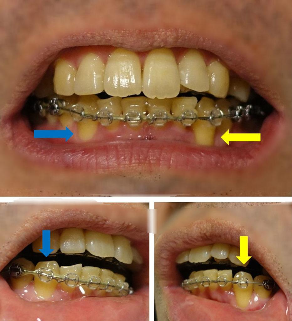 歯科矯正10か月 下顎犬歯左右比較 左が長く見える