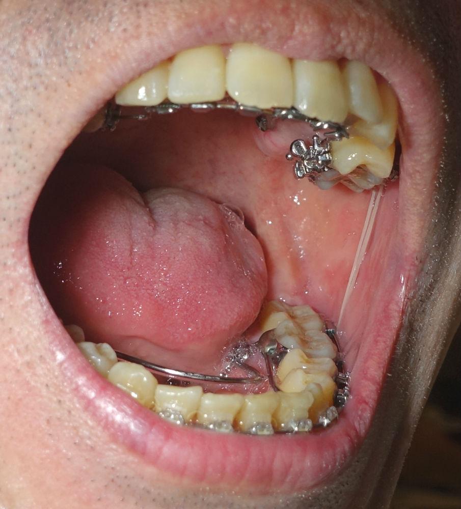 歯科矯正10か月 奥歯の顎間ゴム 結構伸びる