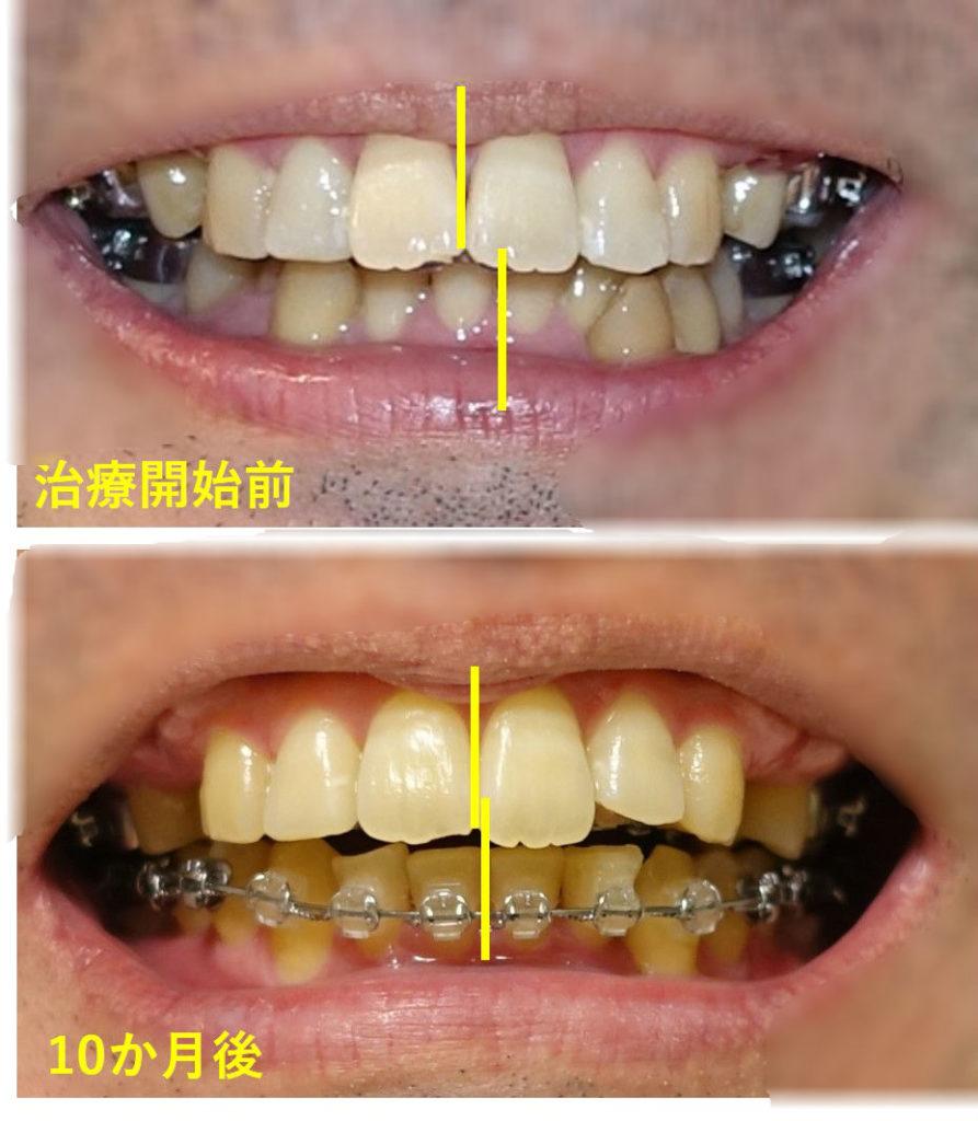 歯科矯正10か月 正中線が合ってきた